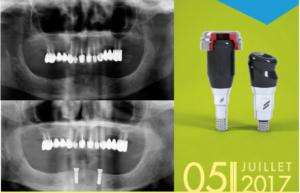 NOVALOC® : La Nouvelle Solution de Prothèse hybride amovible @ Cabinet des Drs Leclercq & Nafash