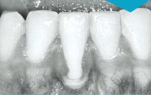 Chirurgie Plastique Parodontale - Quel type de greffe choisir en 2019 ? @ Cabinet des Dr Leclercq & Nafash