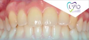 Parodontie & orthodontie - une synergie pour nos patients en omnipratique @ Cabinet des Dr Leclercq & Nafash