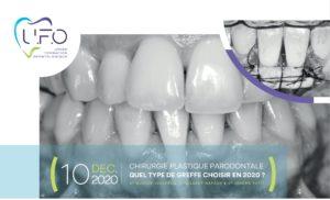 Chirurgie plastique parodontale : quel type de greffe choisir en 2020 ? @ Cabinet des Dr Leclercq, Nafash & Petit